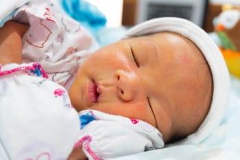 赤ちゃん 黄疸