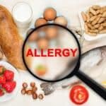 赤ちゃんのアレルギー検査は必要?検査の種類や費用、受ける際の注意点を解説